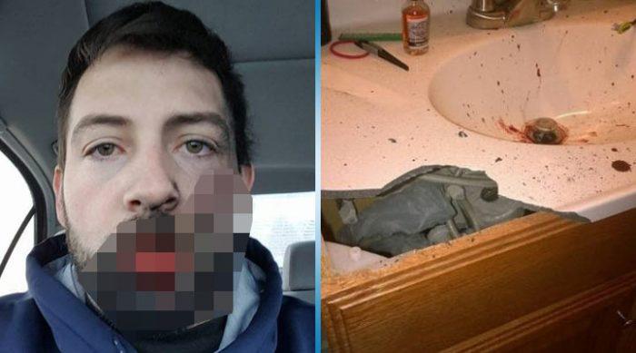 Электронная сигарета взорвалась у этого парня прямо во рту. После этих фотографий я точно откажусь от любого курения