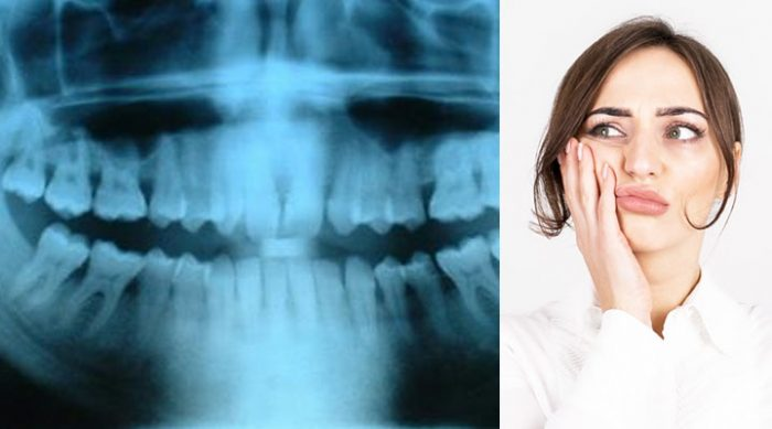 Что вредно для зубов: 9 привычных вещей, от которых надо уже сегодня отказаться