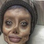 Она хотела любой ценой стать похожей на Анджелину Джоли. Но вышло нечто совсем неожиданное