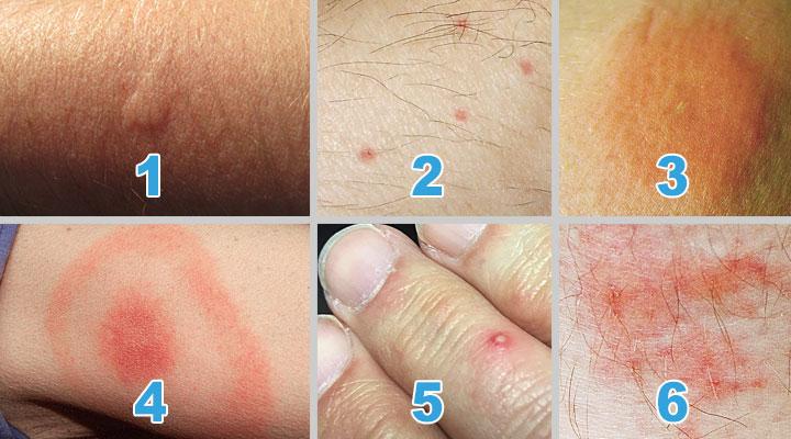 Как узнать укус насекомого