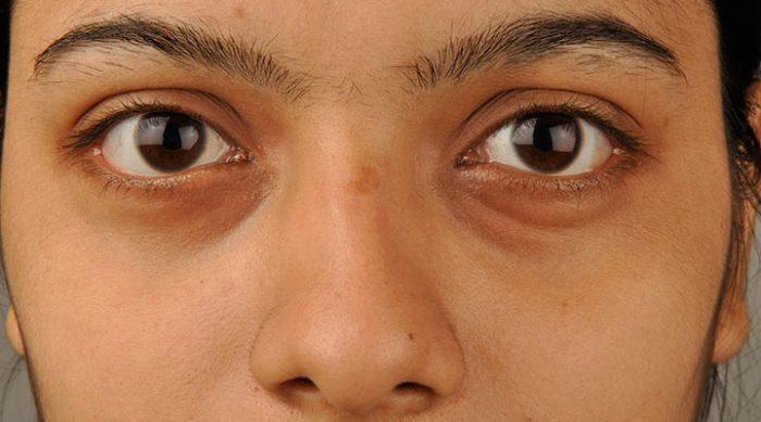 7 легких способов убрать темные круги под глазами